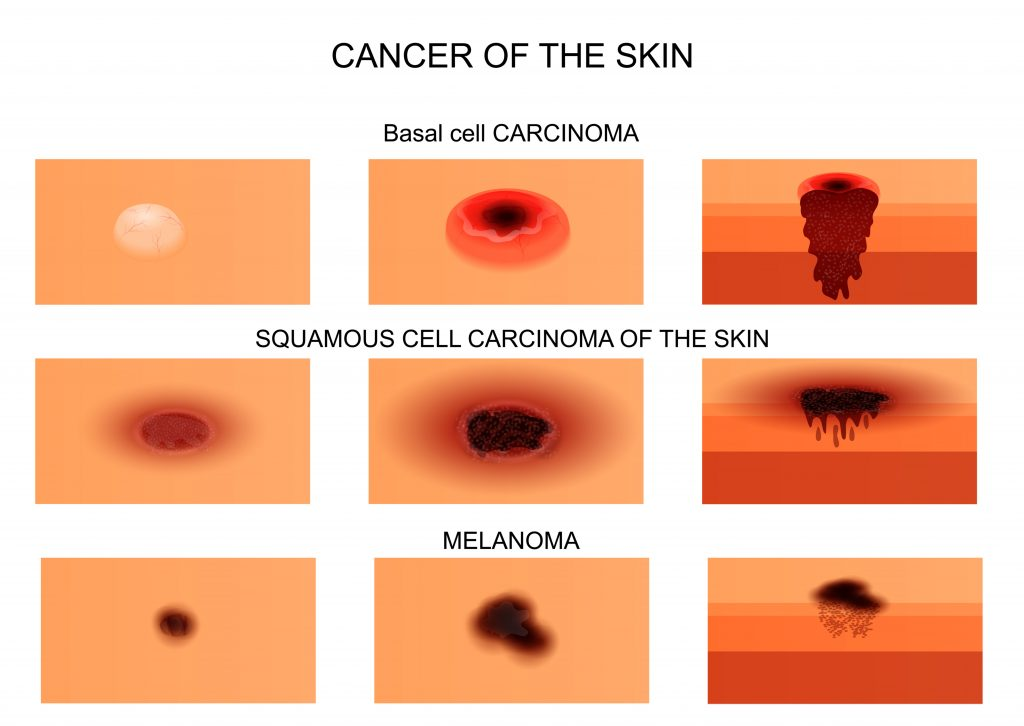 cancer of the skin 1024x726 - Καρκινικές Βλάβες