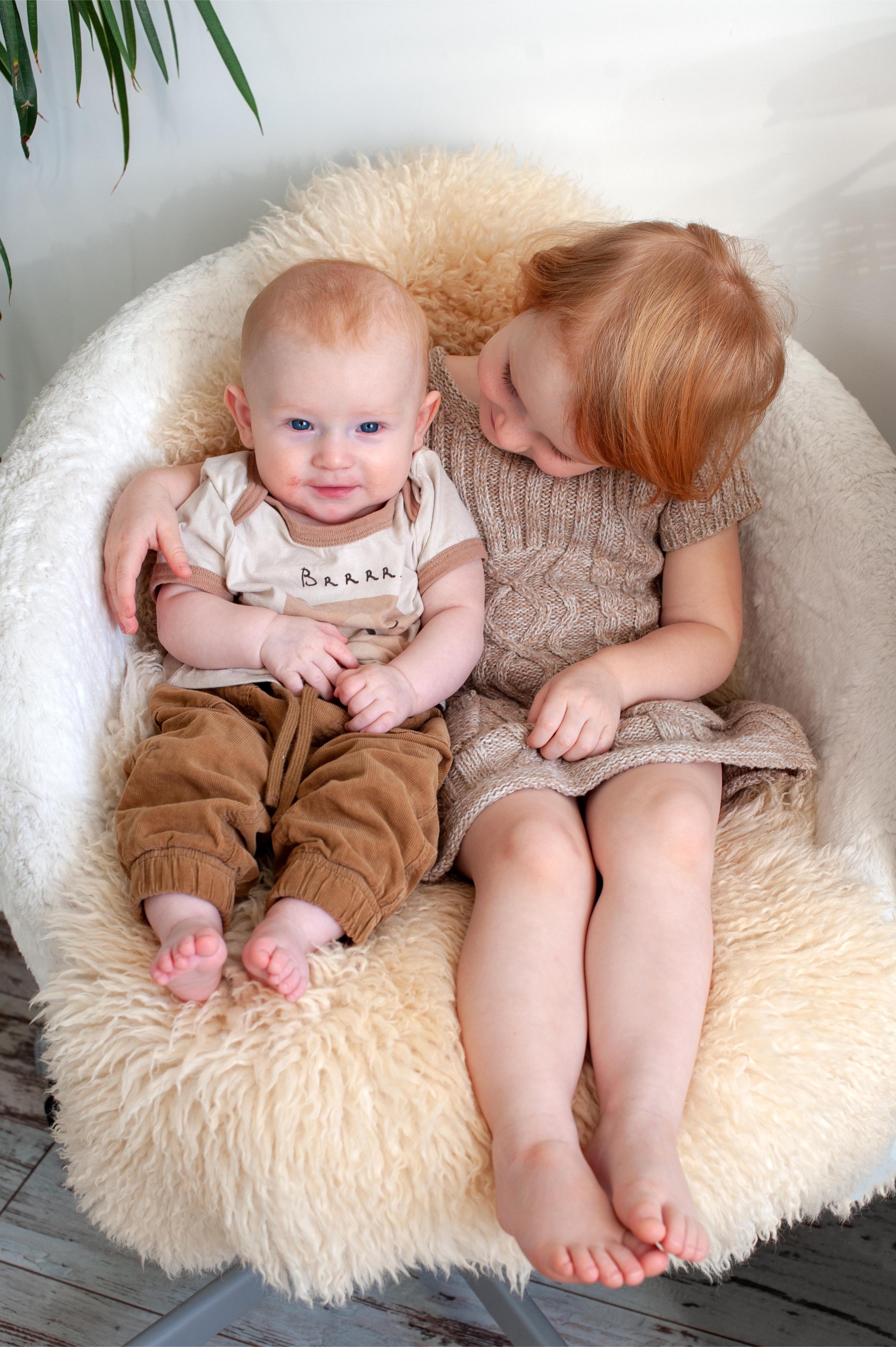 ατοπικη δερματιτιδα 2 - Παιδικές Δερματοπάθειες