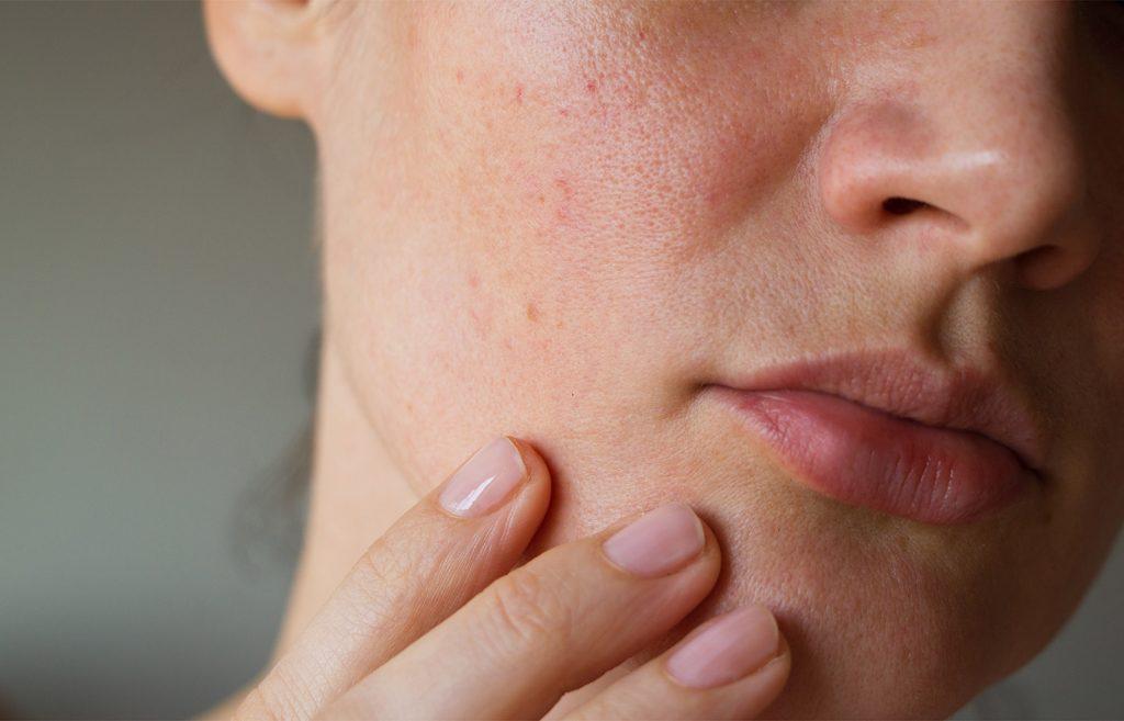 ευαισθητοποιημενο δερμα 1024x657 - Ευαισθητοποιημένο δέρμα